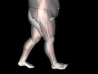 Obesity May Cause Foot Conditions to Develop
