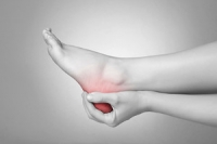 Why Does Plantar Fasciitis Occur?