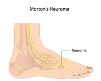 Diagnosing and Treating Morton's Neuroma